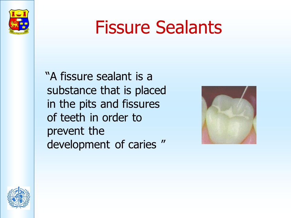 Fissure Sealants A fissure sealant is a substance that is placed in the pits and fissures of teeth in order to prevent the development of caries