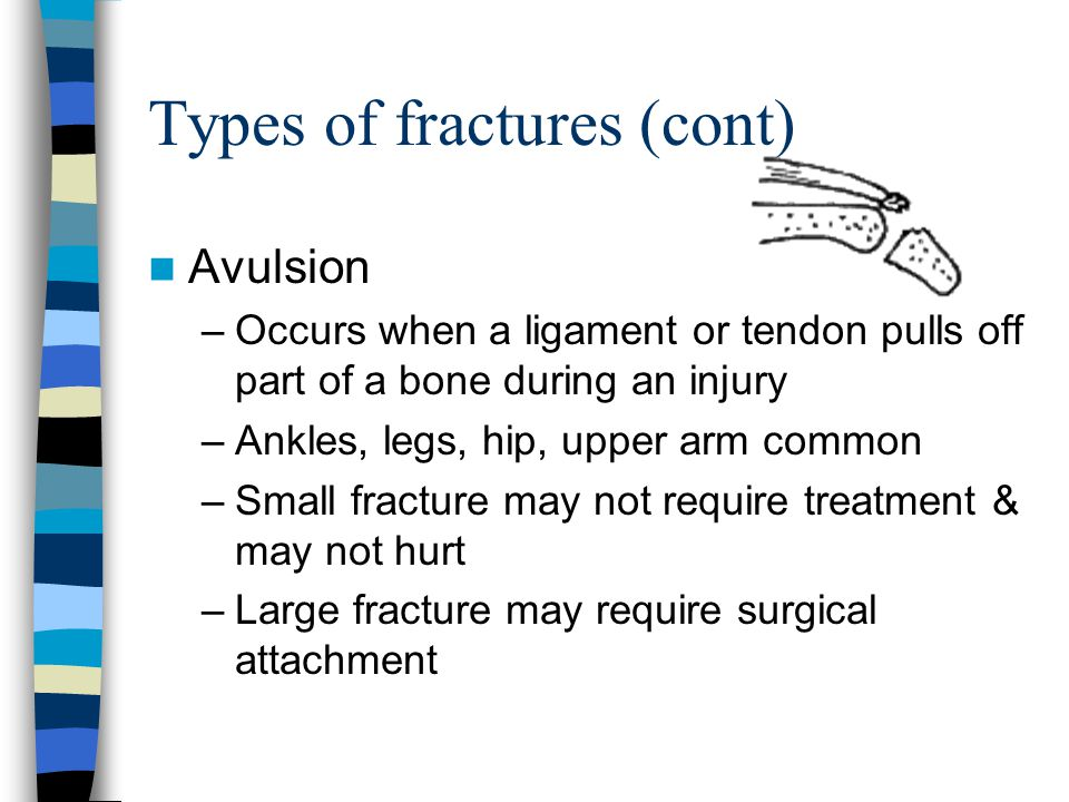 Types of fractures (cont)