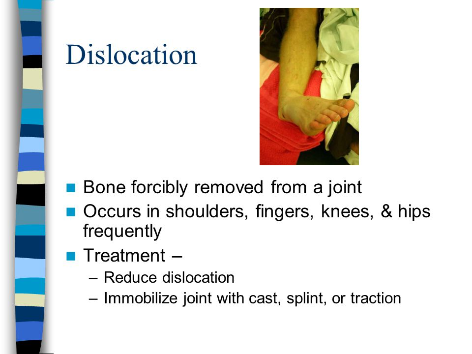 Dislocation Bone forcibly removed from a joint