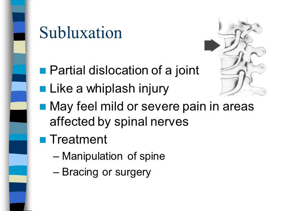 Subluxation Partial dislocation of a joint Like a whiplash injury