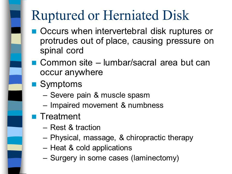 Ruptured or Herniated Disk