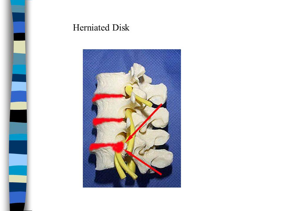 Herniated Disk