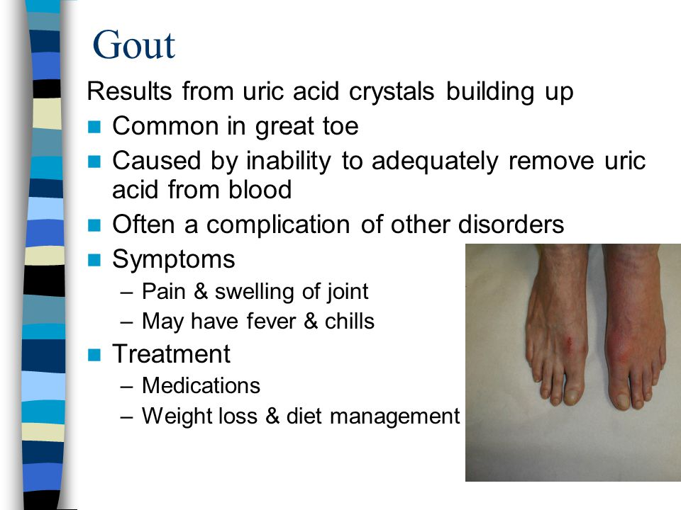 Gout Results from uric acid crystals building up Common in great toe