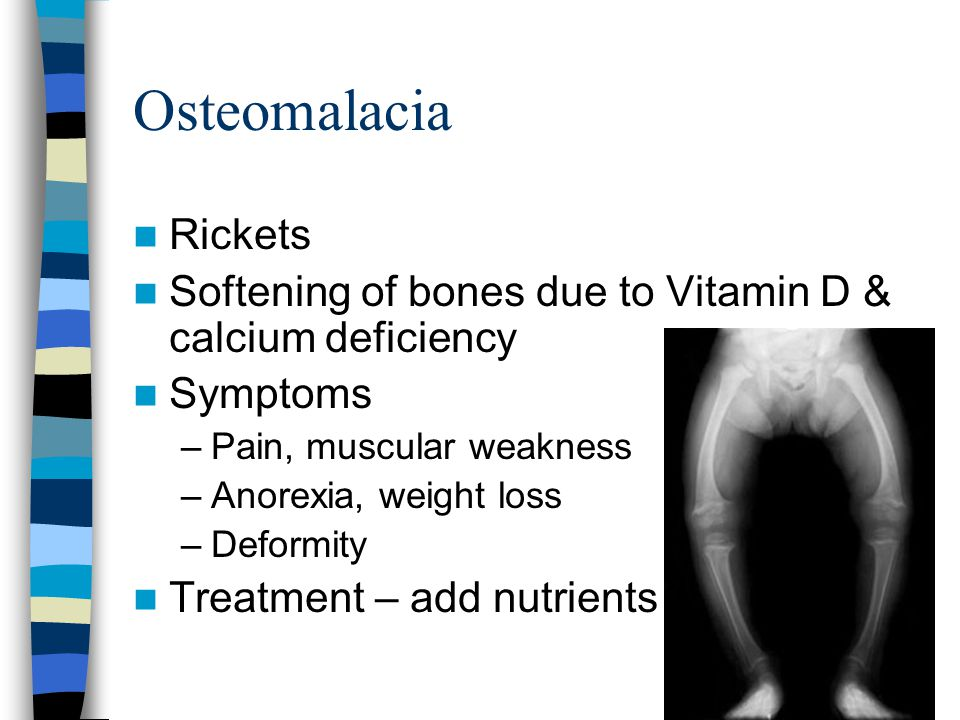 Osteomalacia Rickets. Softening of bones due to Vitamin D & calcium deficiency. Symptoms. Pain, muscular weakness.