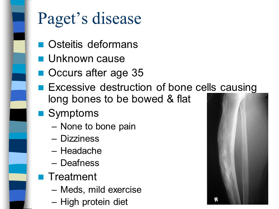 Paget's disease Osteitis deformans Unknown cause Occurs after age 35