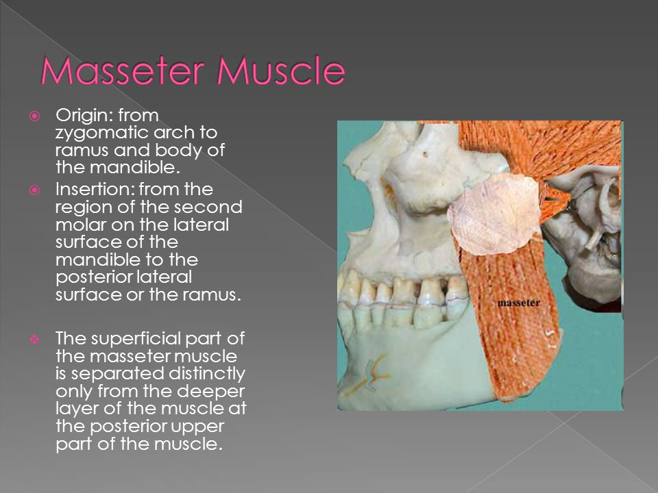 Masseter Muscle Origin: from zygomatic arch to ramus and body of the mandible.