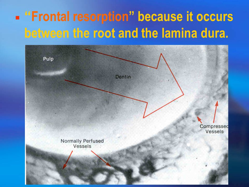 Frontal resorption because it occurs between the root and the lamina dura.