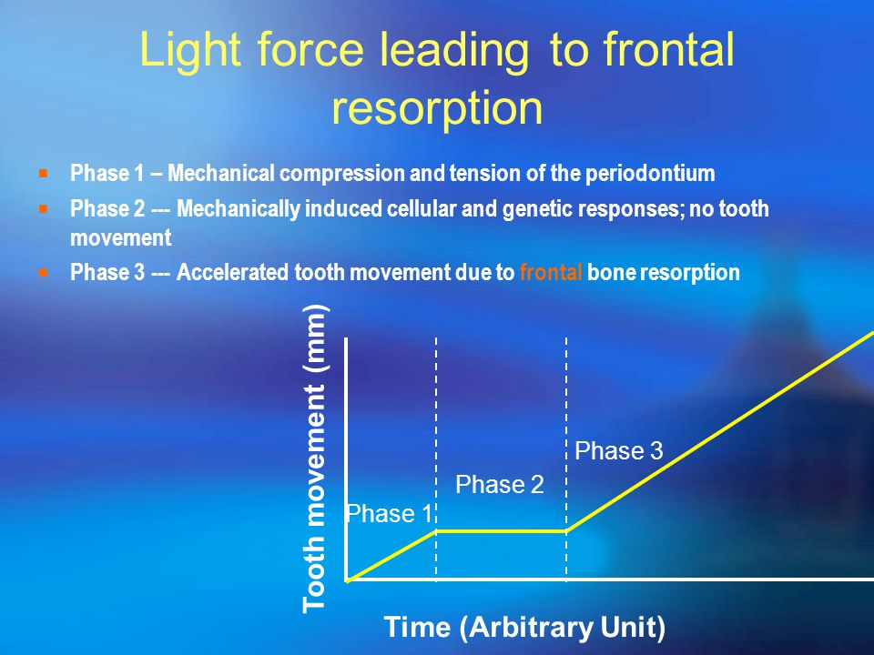 Light force leading to frontal resorption