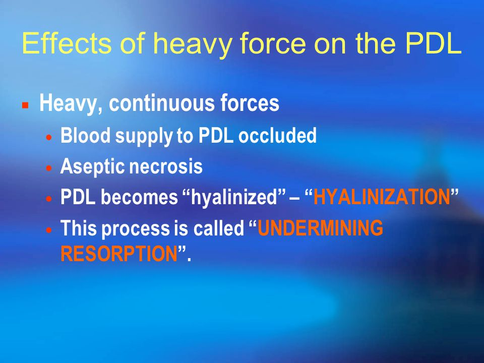 Effects of heavy force on the PDL