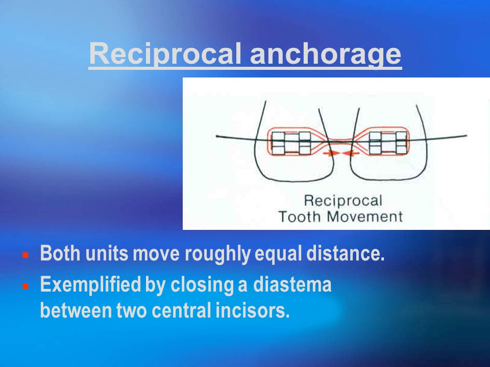 Reciprocal anchorage Both units move roughly equal distance.