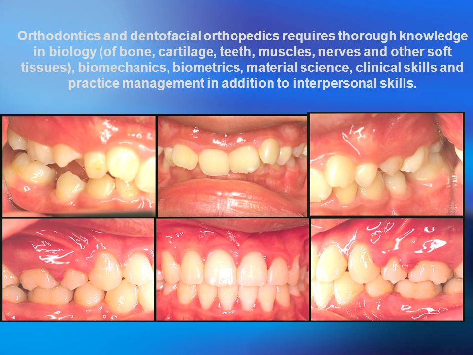 Orthodontics and dentofacial orthopedics requires thorough knowledge in biology (of bone, cartilage, teeth, muscles, nerves and other soft tissues), biomechanics, biometrics, material science, clinical skills and practice management in addition to interpersonal skills.