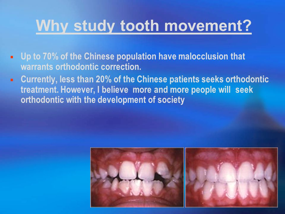 Why study tooth movement