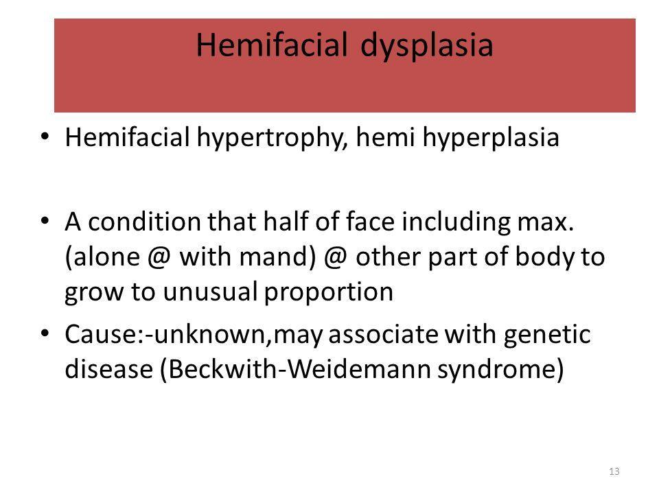 Hemifacial dysplasia Hemifacial hypertrophy, hemi hyperplasia