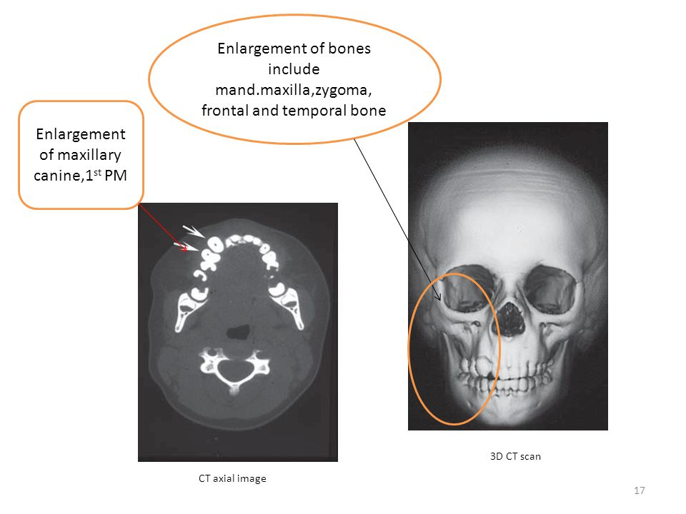 Enlargement of bones include mand.maxilla,zygoma,