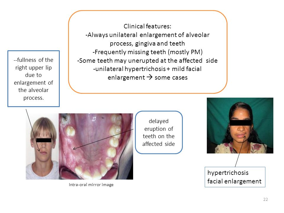 -Always unilateral enlargement of alveolar process, gingiva and teeth