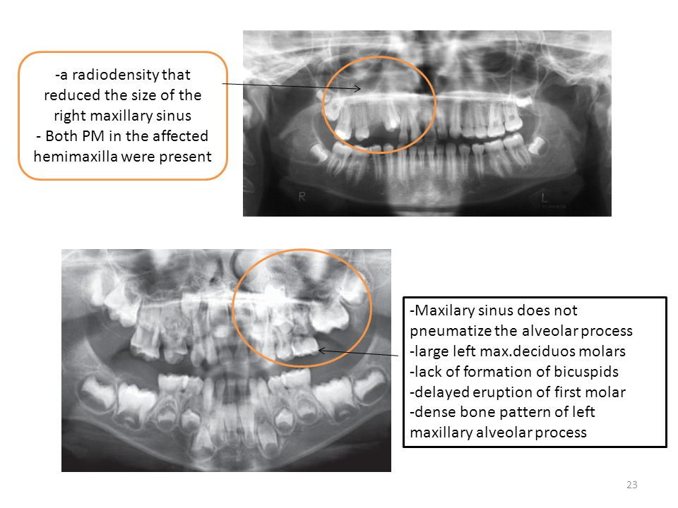 -a radiodensity that reduced the size of the right maxillary sinus