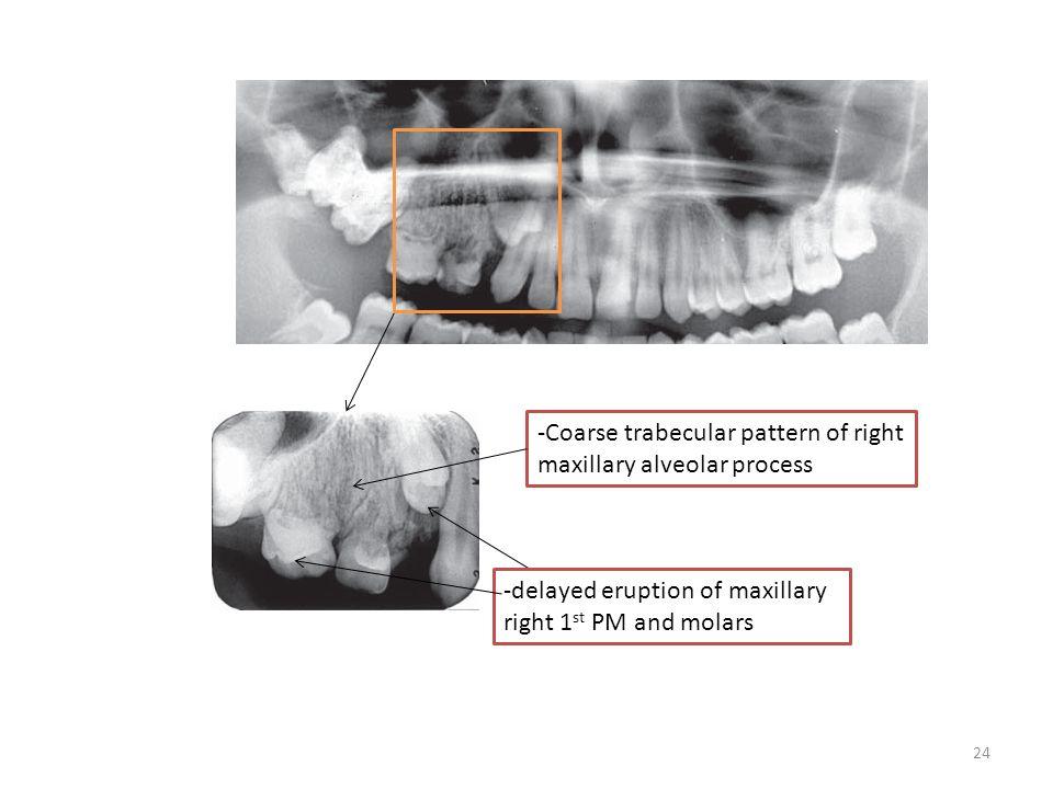 -Coarse trabecular pattern of right maxillary alveolar process