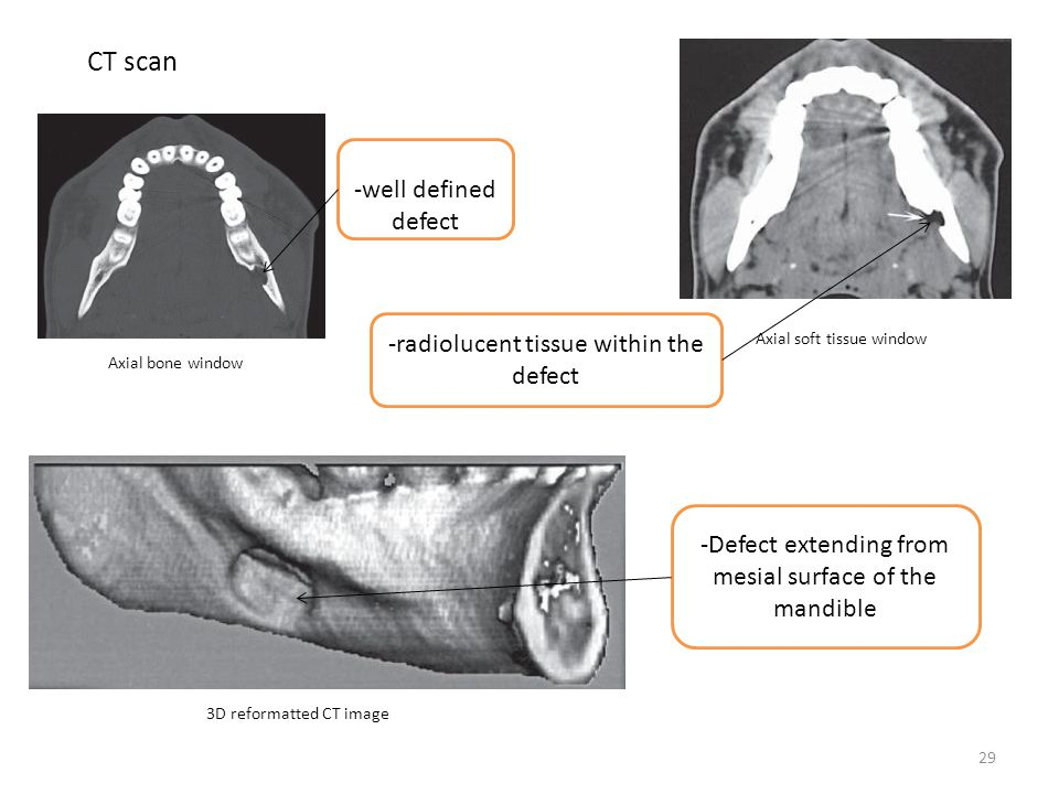 CT scan -well defined defect -radiolucent tissue within the defect