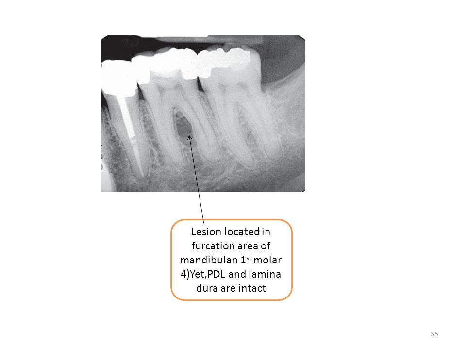 Lesion located in furcation area of mandibulan 1st molar 4)Yet,PDL and lamina dura are intact