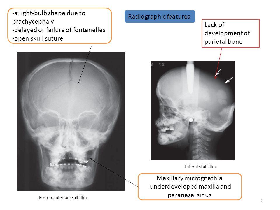 -a light-bulb shape due to brachycephaly