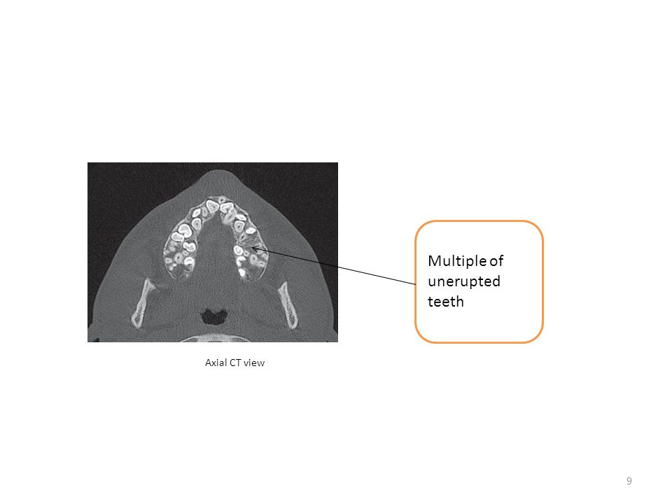 Multiple of unerupted teeth