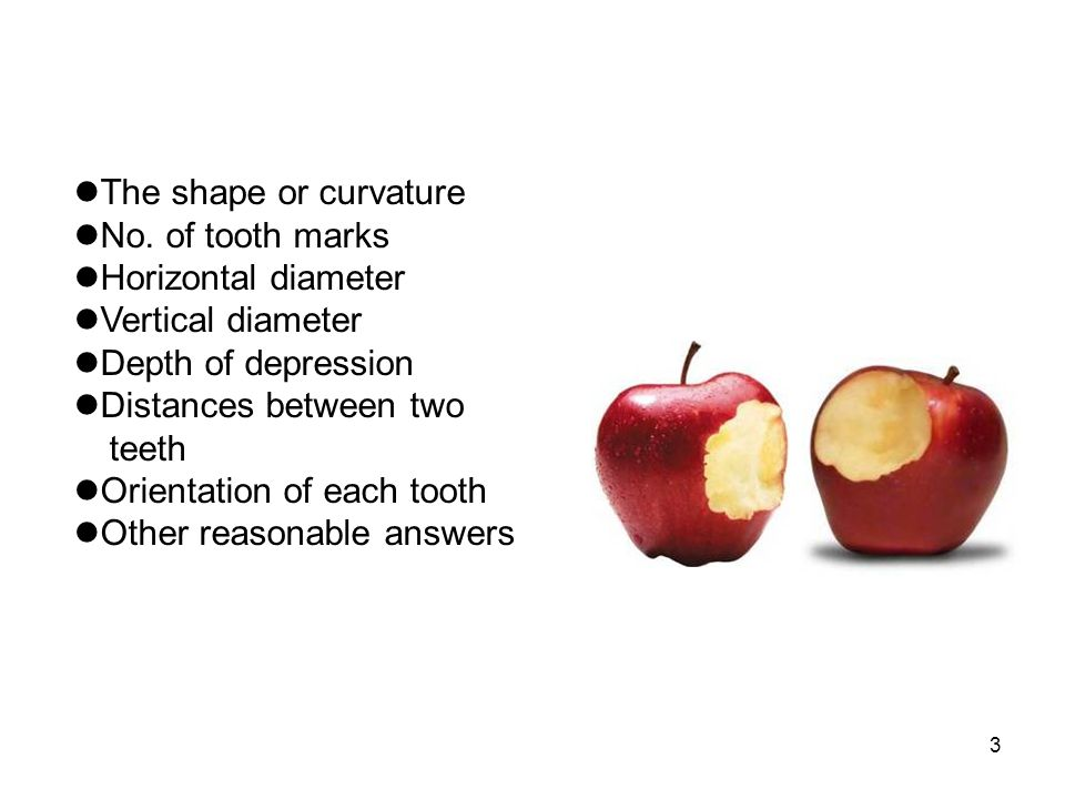 The shape or curvature No. of tooth marks. Horizontal diameter. Vertical diameter. Depth of depression.