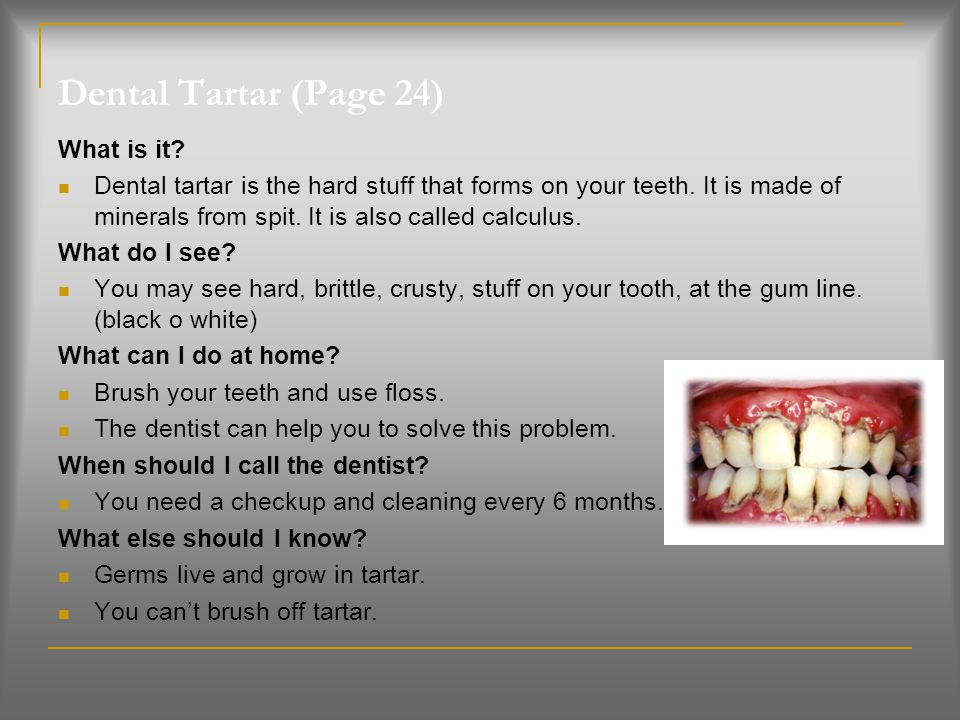 Dental Tartar (Page 24) What is it