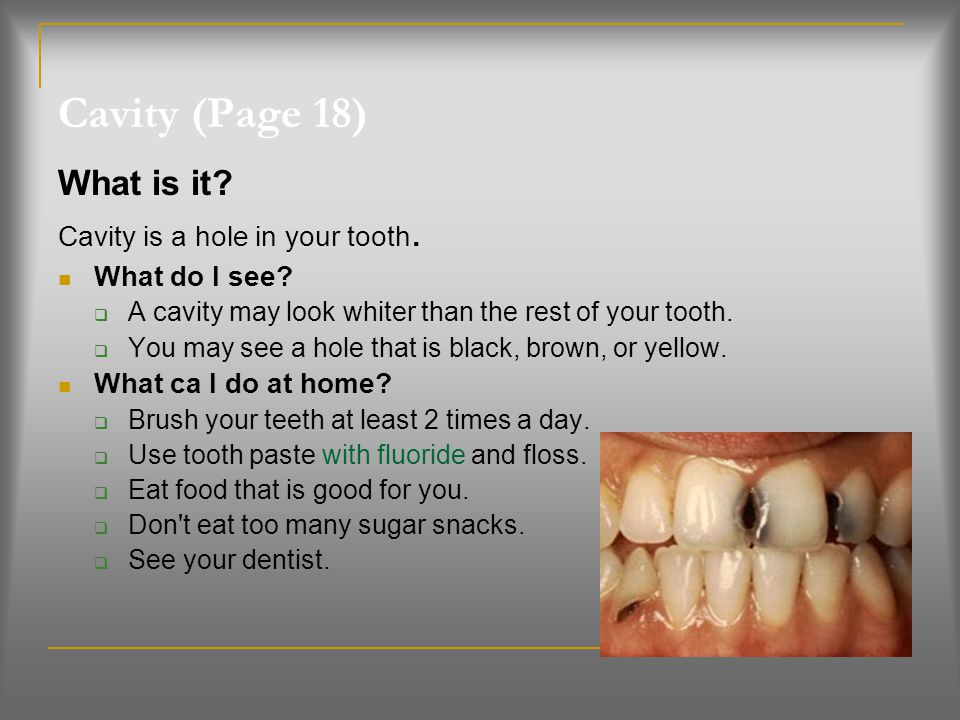 Cavity (Page 18) What is it Cavity is a hole in your tooth.
