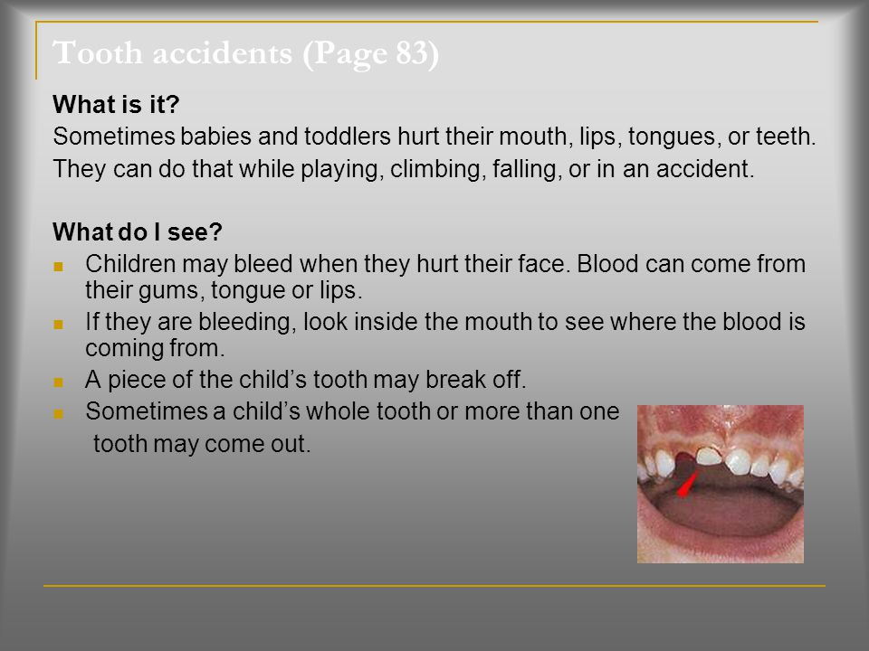 Tooth accidents (Page 83)