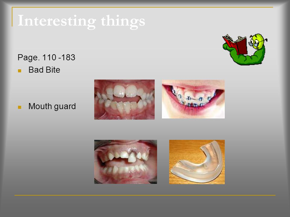 Interesting things Page. 110 -183 Bad Bite Mouth guard