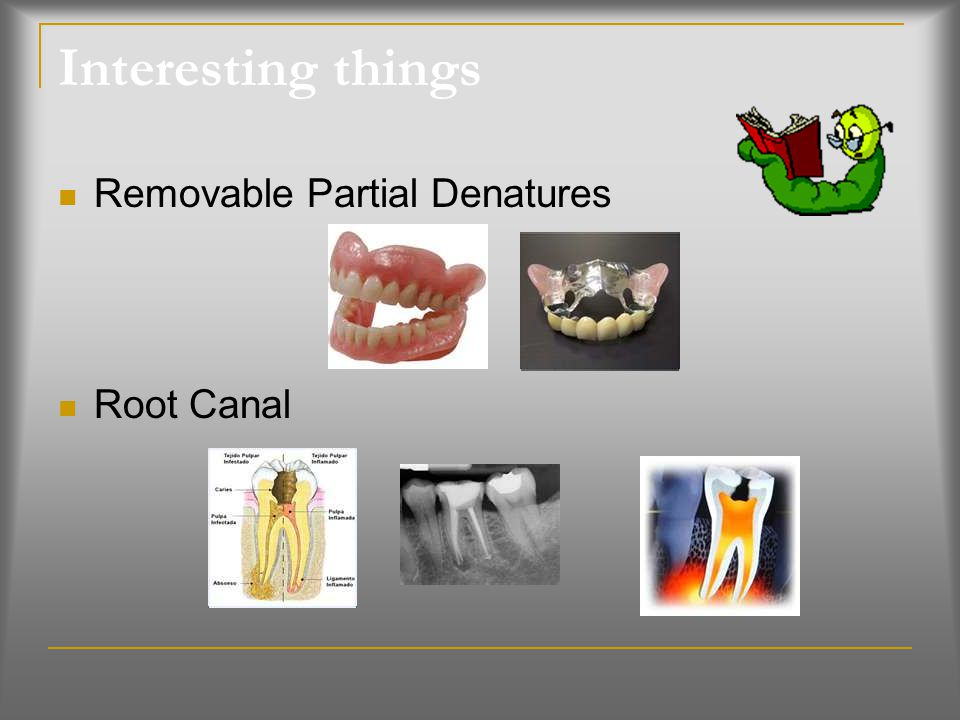 Interesting things Removable Partial Denatures Root Canal