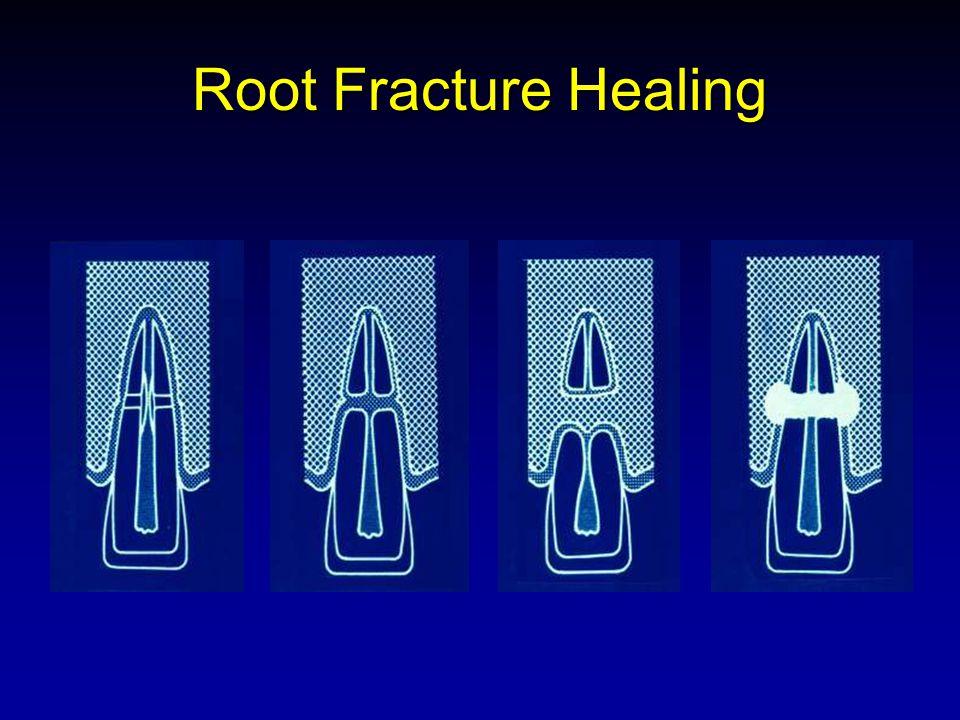 Root Fracture Healing