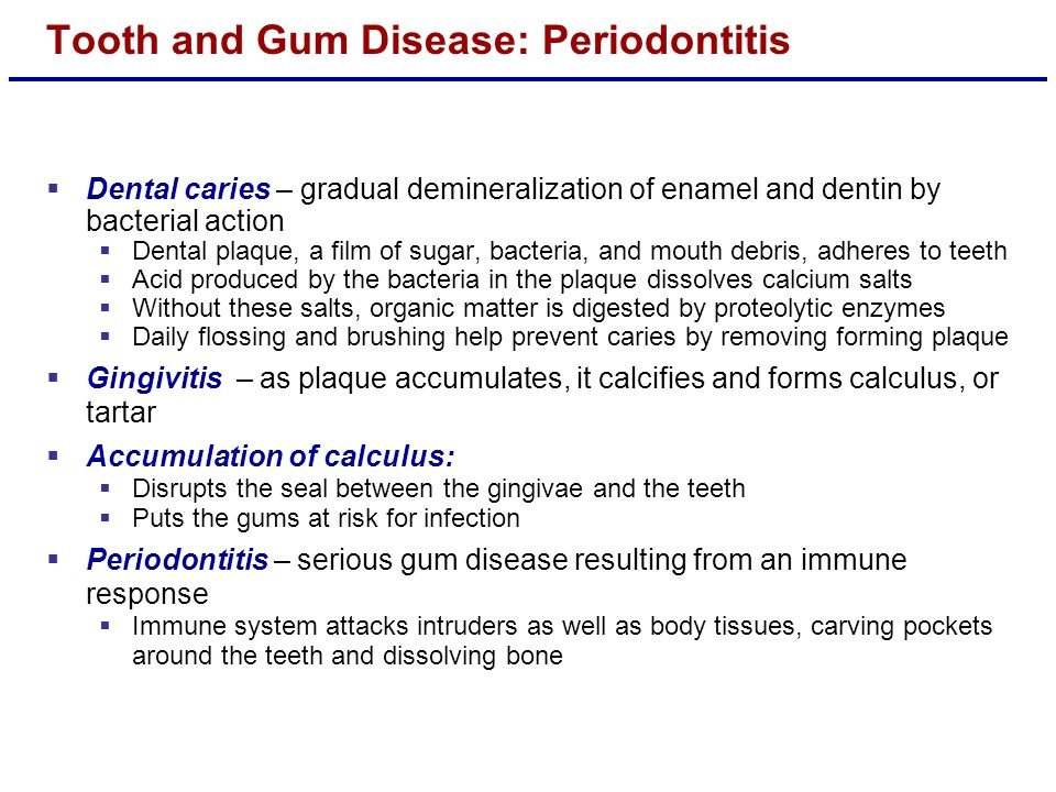 Tooth and Gum Disease: Periodontitis