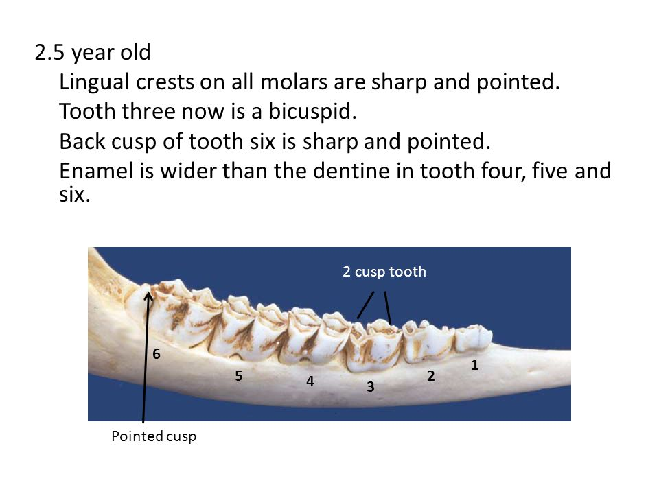 2. 5 year old Lingual crests on all molars are sharp and pointed