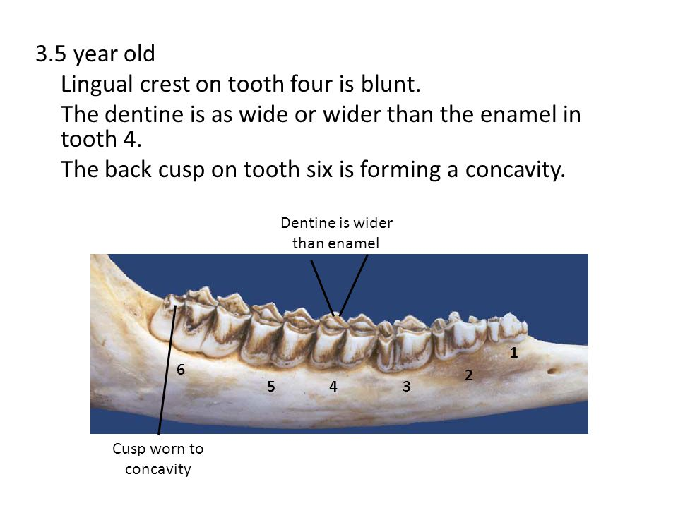 Dentine is wider than enamel