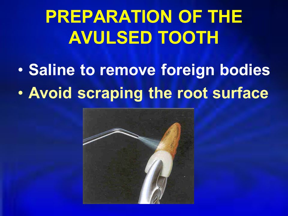 PREPARATION OF THE AVULSED TOOTH