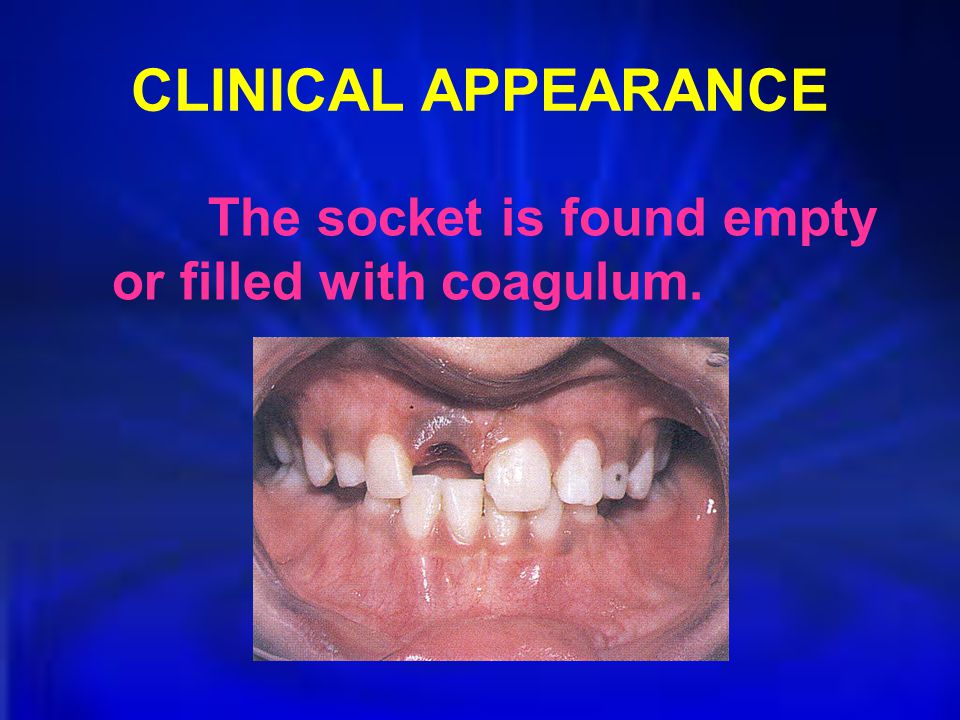 CLINICAL APPEARANCE The socket is found empty or filled with coagulum.