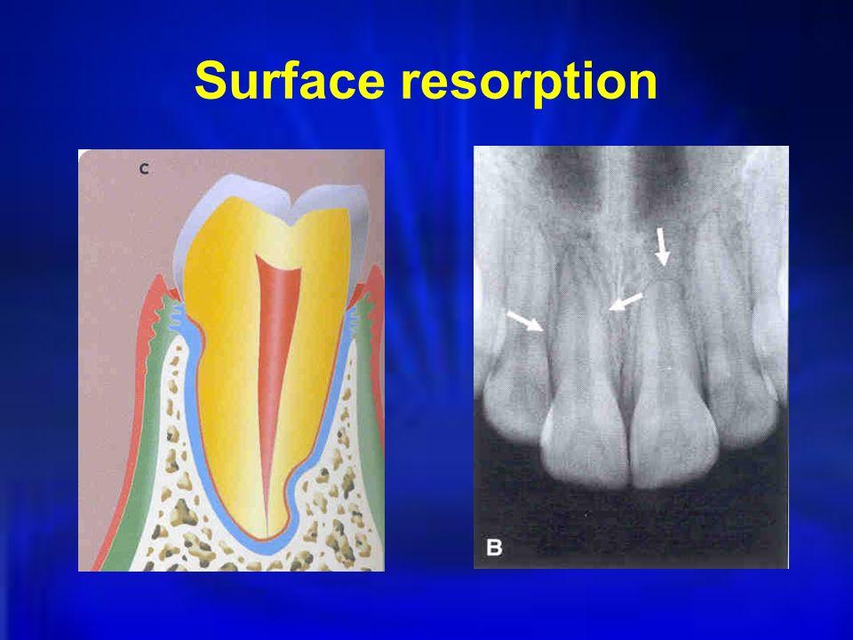 Surface resorption