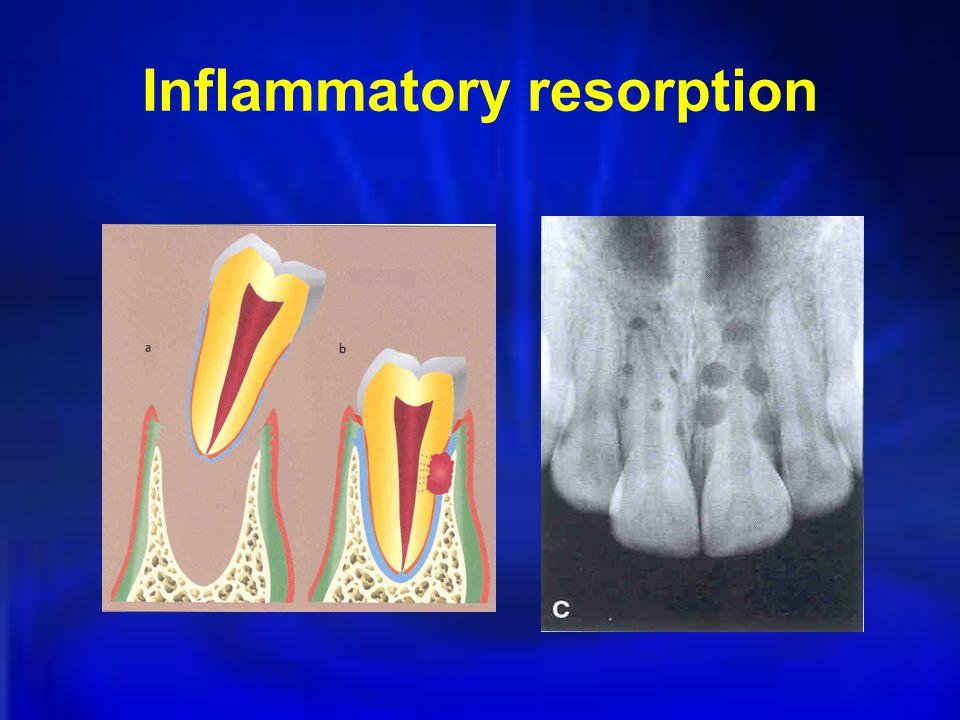 Inflammatory resorption
