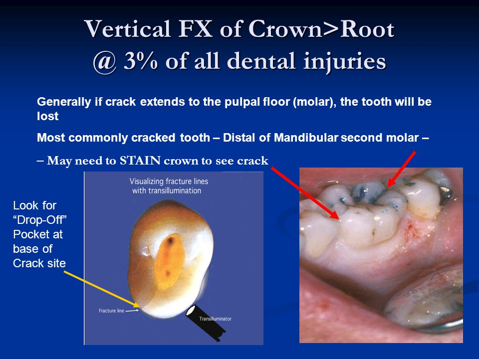 Vertical FX of Crown>Root @ 3% of all dental injuries