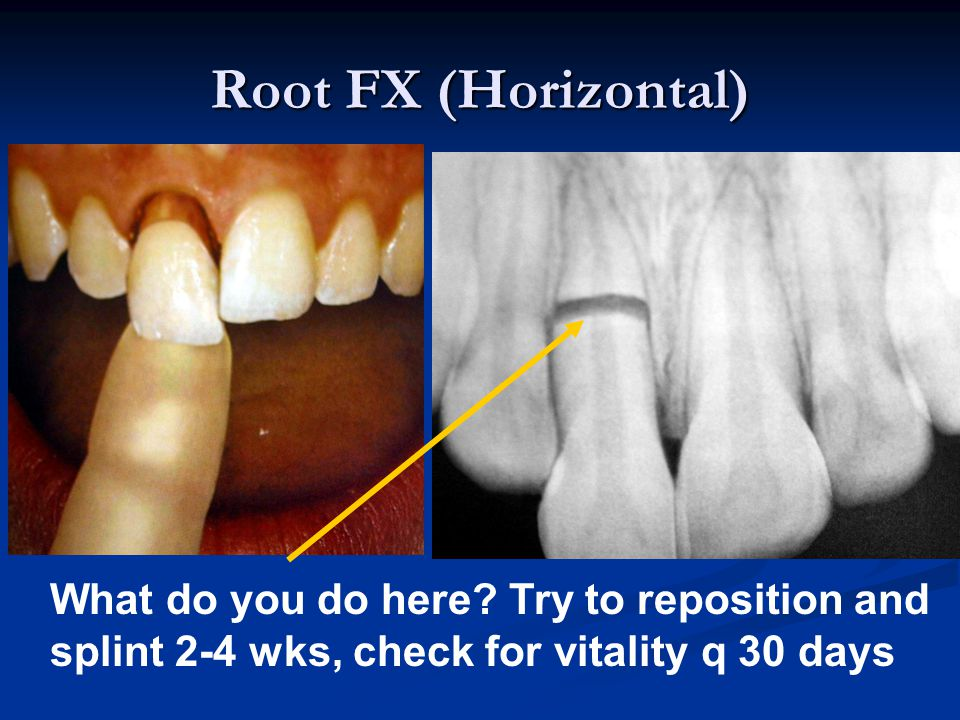 Root FX (Horizontal) What do you do here.