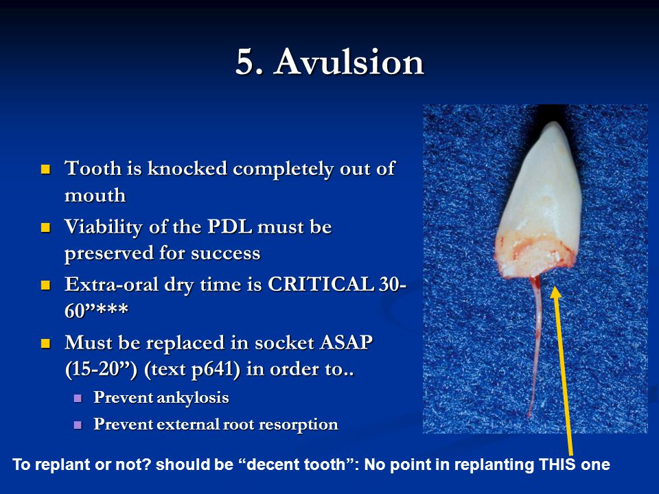 5. Avulsion Tooth is knocked completely out of mouth