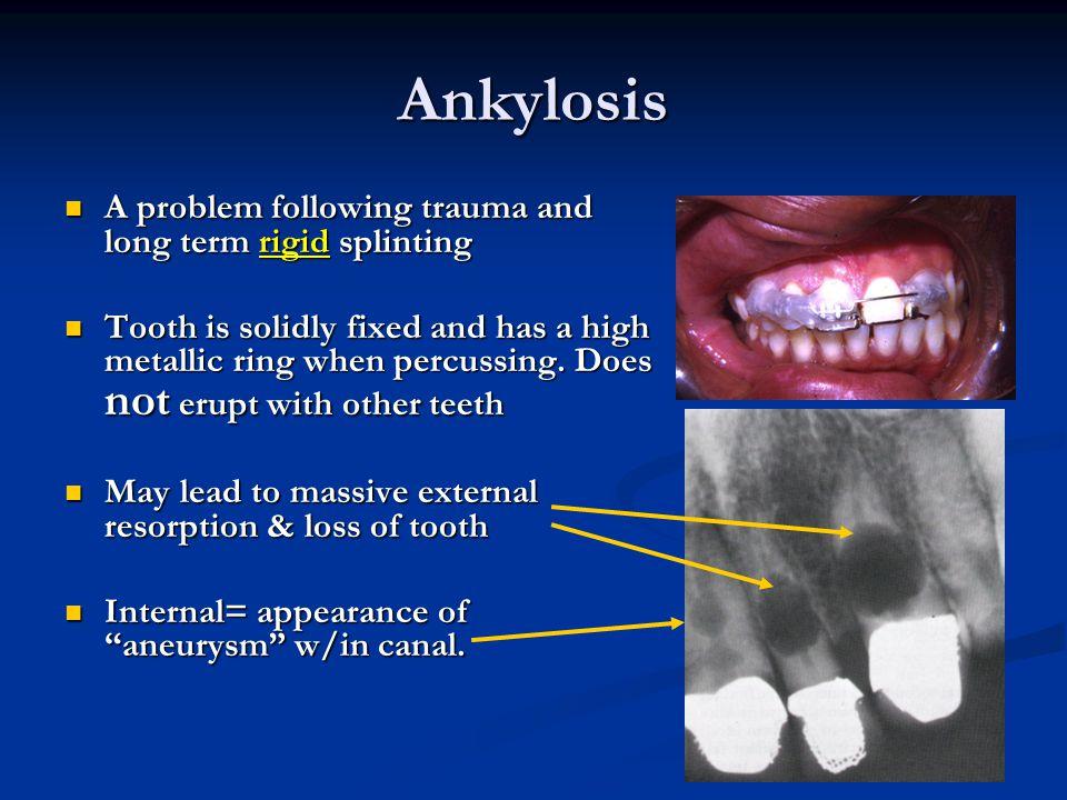 Ankylosis A problem following trauma and long term rigid splinting