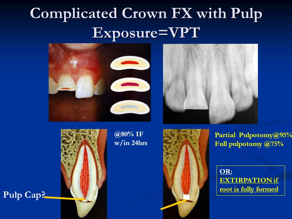 Complicated Crown FX with Pulp Exposure=VPT