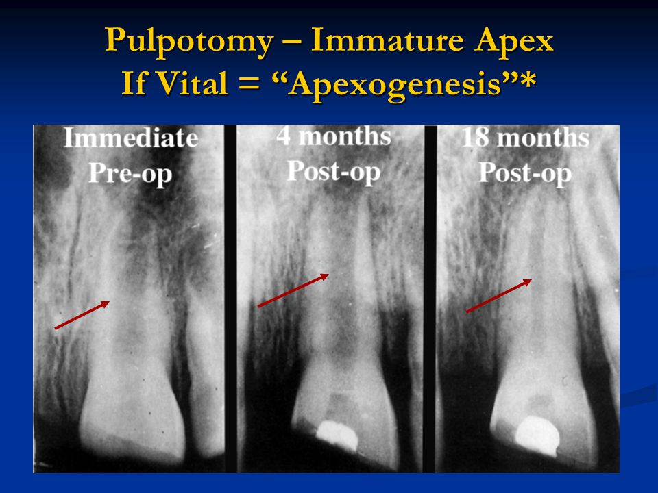 Pulpotomy – Immature Apex If Vital = Apexogenesis *