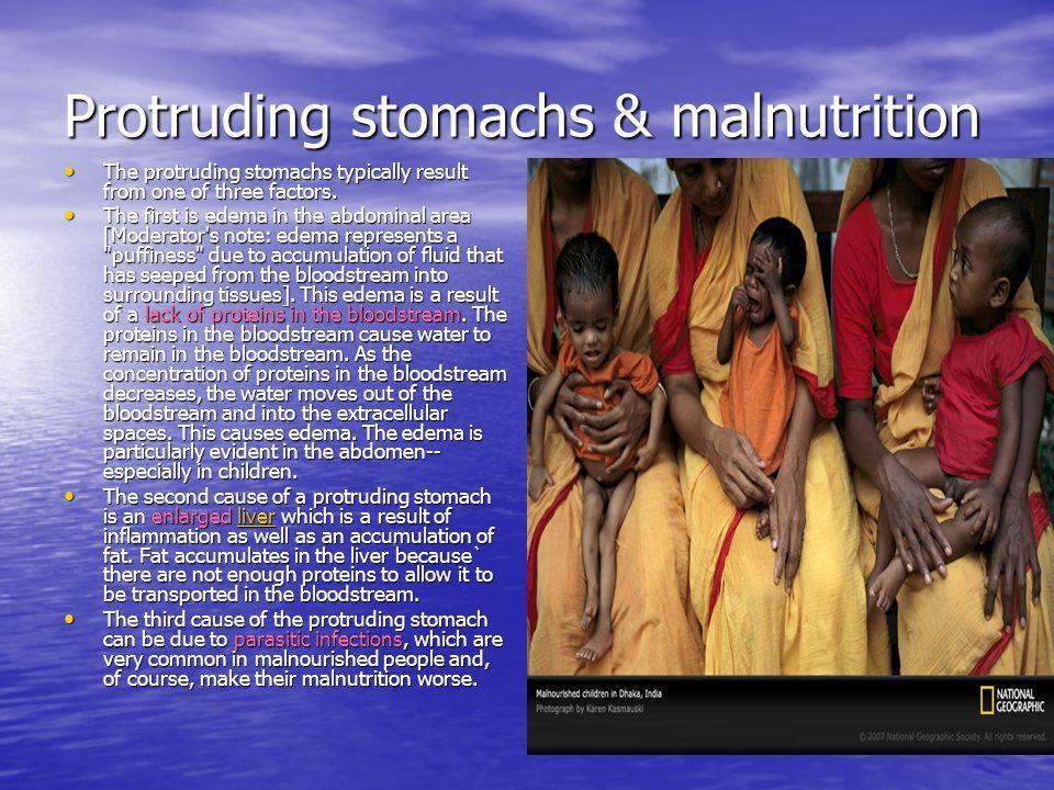 Protruding stomachs & malnutrition