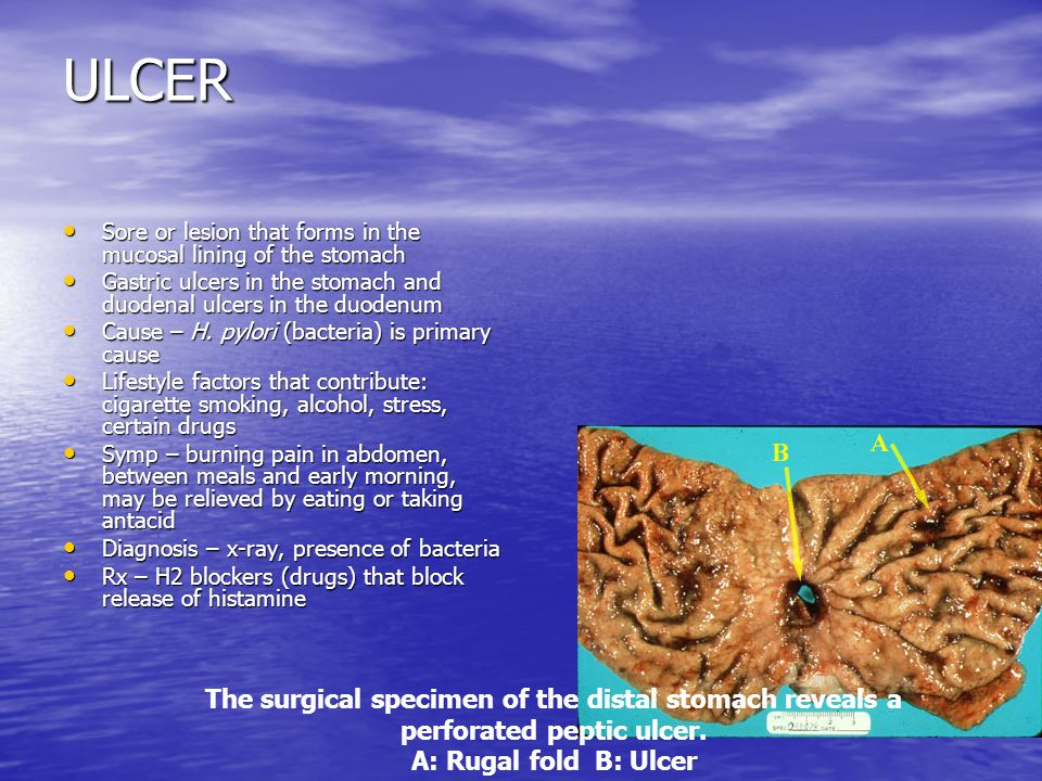 ULCER The surgical specimen of the distal stomach reveals a