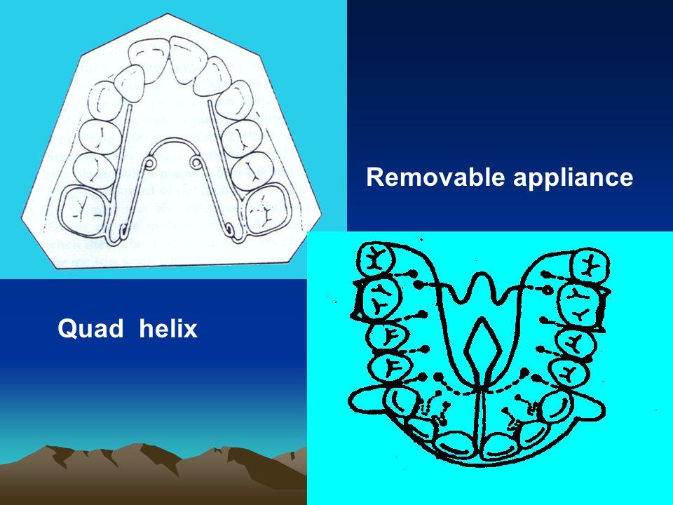Removable appliance Quad helix