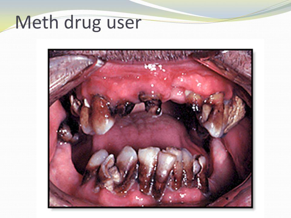 Meth drug user