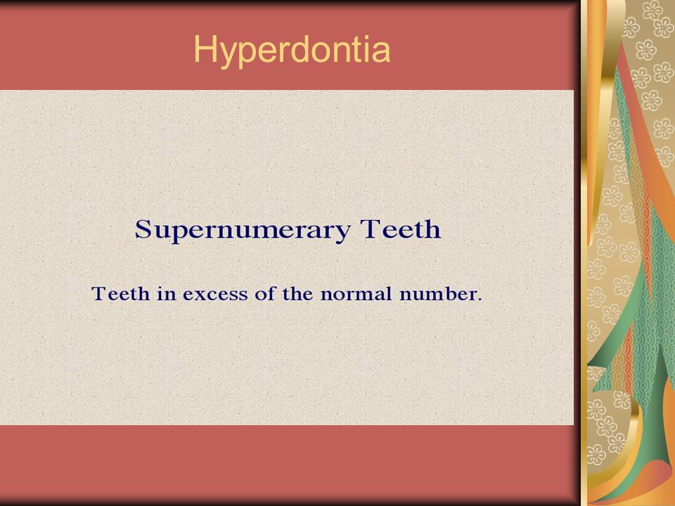 Hyperdontia Supernumerary teeth